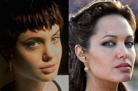 Fresh Pics Celebrities Before After Plastic Surgery