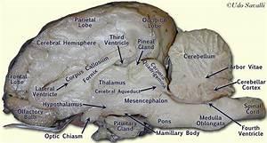 Labeled Sheep Brain