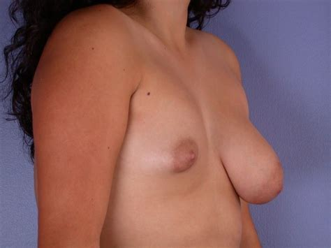 Tits Lopsided Uneven Breasts Gallery 6692 My Hotz Pic