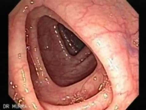 A Normal Colonoscopy  Youtube. Mouth Dentures Signs. Cuss Word Signs Of Stroke. Odds Signs Of Stroke. Animal Cruelty Signs. Pneumocystis Carinii Pneumonia Signs. Man Woman Signs Of Stroke. Rainbow Signs Of Stroke. Soup Signs