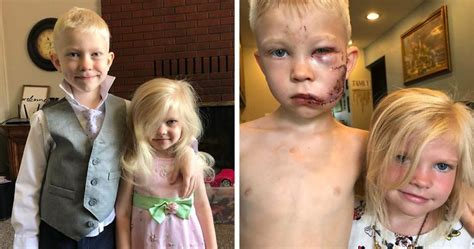 A 6-year-old Superhero Brother Saves His Sister From Dog ...