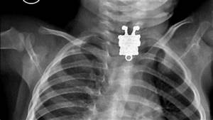 Spongebob Squarepants Turns Up In Child U0026 39 S X-ray Video