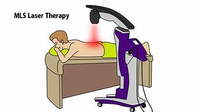 Laser Therapy Mls Edge Cutting