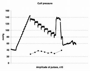 The Superior Graph Is Cuff Pressure Record With Motion Artifact After