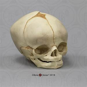 Fetal Human Skull 40 1  2 Weeks