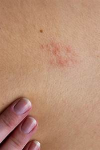 Image Gallery shingles underarm