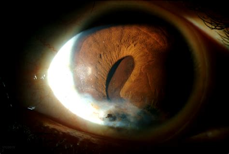 slit l eye exam woman with iris lesion and vision loss