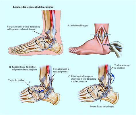 Dolore Interno Spalla Destra - dolore alla caviglia terapia per la distorsione esercizi