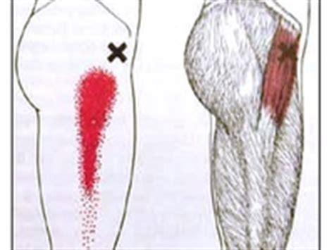 47 best images about trigger points on pinterest massage