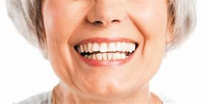 Teeth Lost Options Health Far Harvard Smile