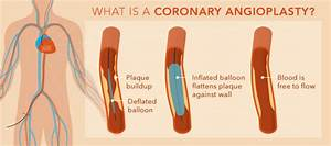 Coronary Angioplasty And Heart Stenting In Kolkata  U2013 Heart