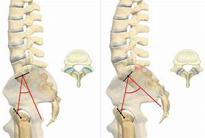 Pelvic Incidence  Pi   Facet Joint  Fj  Arthritis And