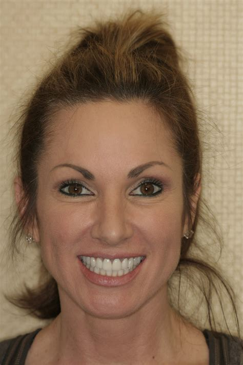 Beautiful Smile Makeover for Short teeth at SmilesNY in New York City