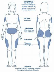 Diagram Showing The Areas Of The Body Most Suitable For