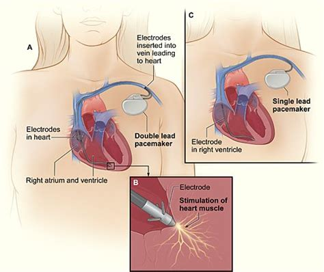 pacemaker chambre pacemaker of the surgery precautions procedure