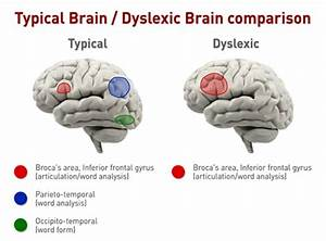 Dyslexia Brain Diagram
