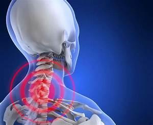 Тенториум для лечения остеохондроза