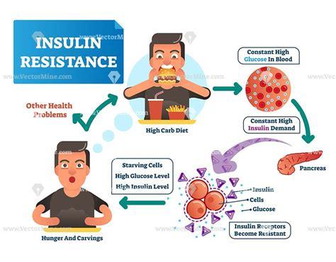 insulin resistance vector illustration diagram jason