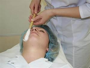 Удалить бородавки азотом в ижевске
