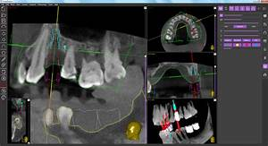 Implant Installation In Immediate Proximity Of The Sinus