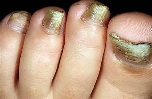 Средство от грибка ногтей на ногах и руках
