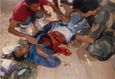 50 Bmg Wound by War Story Sabung Nyawa Di Mogadishu