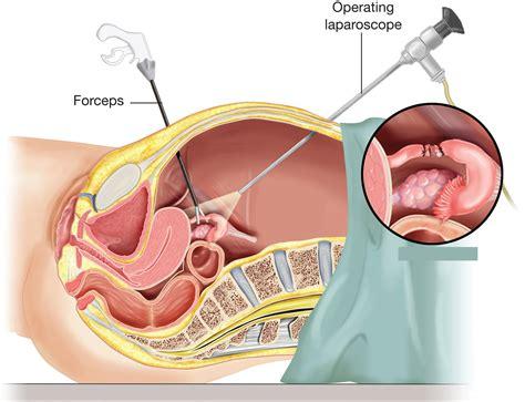Oophorectomy - Ovary Removal Surgery, Salpingo Oophorectomy