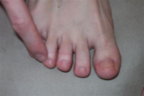 pressure points   foot massage livestrongcom