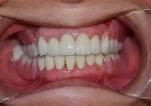 Precision Partial Denture Upper