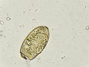 Paragonimus Westermani (lung Fluke) Stock Image - Image of ...