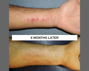 harm scars removal treatment arm scars