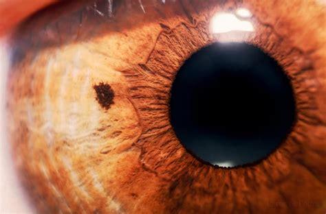 blind spots gould vision