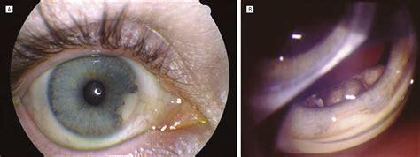 amyloid mass   ciliary body allergy  clinical