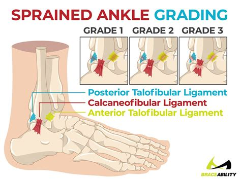 sprain  twist   roll decipher  ankle injury