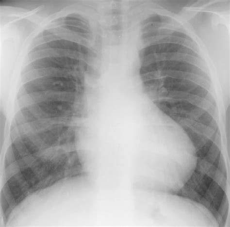 Plain Radiographic Diagnosis Of Congenital Heart Disease. Back Order Domain Name America Virgin Islands. Free Website Maker And Hosting. Employment Discrimination Lawyers. Best Carpet Cleaning Company. Scope Management Software Hair Removal Miami. Incoming Phone Call Tracking. Temporary Car Insurance Young Drivers. Web Based Pos Open Source Texas Star Roofing