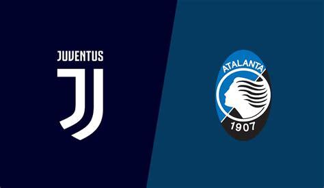 Juventus Vs Atalanta - Paulo Dybala Paulo Dybala Photos ...
