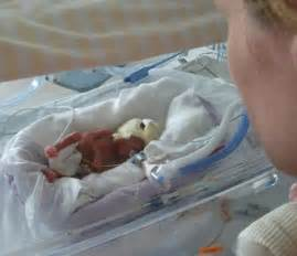 Are doctors defying nature by keeping premature babies ...