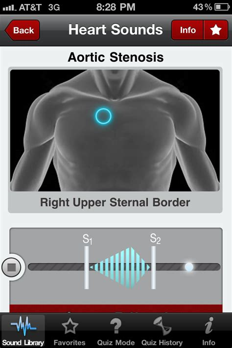Heart Murmur Location