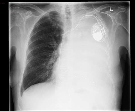 total atelectasis  obstructing central bronchial