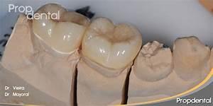 Endocorona Incrustaciones dentales overlay de tipo endocoronas