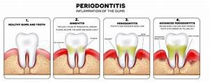 Periodontal Disease Therapy - My Fairfax Dental