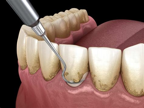 scaling  root planing wilkinson dental