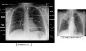 Tuberculosis Test Chest X-ray