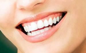 Weiße Zähne Hausmittel : gelbe z hne hier helfen oftmals einfache hausmittel ~ Frokenaadalensverden.com Haus und Dekorationen