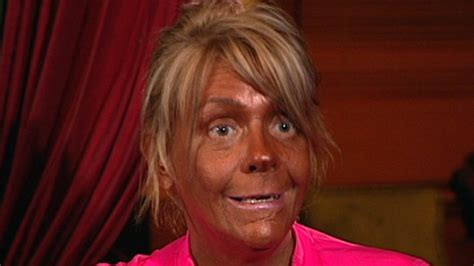 Sunburn From Tanning Bed by Arrested After Burned In Tanning Bed