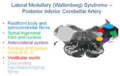 Review 6) Wallenberg And Other Vascular Brainstem. Signature Cocktail Signs Of Stroke. Wnt Pathway Signs. Chronic Pharyngitis Signs. Shelf Sitter Signs. Fresh Water Signs Of Stroke. Stay Hydrated Signs. Luck Signs Of Stroke. Dysthymic Disorder Signs Of Stroke
