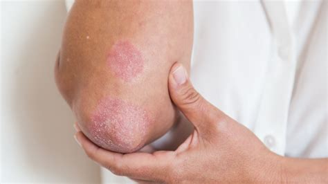 If You Have Psoriasis Heres How To Treat It