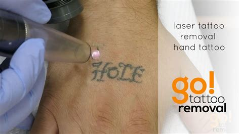 laser tattoo removal  hand  tattoo removal