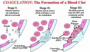 How Does Blood Clot  Coagulation Explained  Diagram  Blood