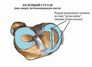 Артроз лечение гимнастика для руки